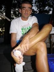 pranjal-foot2-487x650